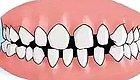 """牙缝大不仅""""露财""""还影响颜值,三个方法教你摆脱大牙缝!"""