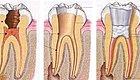 对根管治疗有疑问?牙医的七个回答让你茅塞顿开!