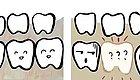缺牙不管,竟然会导致这6种严重的后果?!