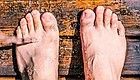 夏天来了,脚也臭了?你是得脚气病了吗?