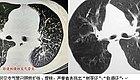 支气管炎和支气管肺炎有什么不同?
