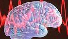 引以为戒!一例肌阵挛失神癫痫治疗失败引发的思考