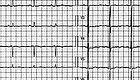 """心电图有""""心肌缺血"""",需要吃阿司匹林吗?"""