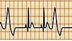 早搏(或脉搏间歇)是心脏病吗?要紧吗?