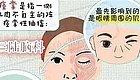 【三陆推荐】眼皮跳是财是灾?警惕面肌痉挛。