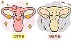 出现卵巢早衰,脸上可能有这四种表现