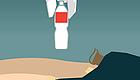 慢粒白血病患者治疗选择:每种方案都有优缺点!